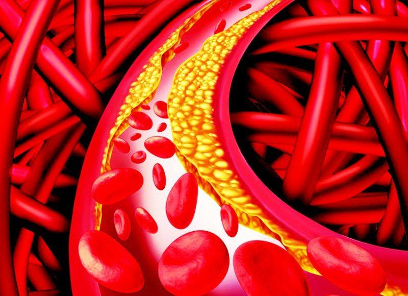 خطوات للحد من ارتفاع الكوليسترول